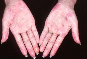 cara menyembuhkan penyakit kulit